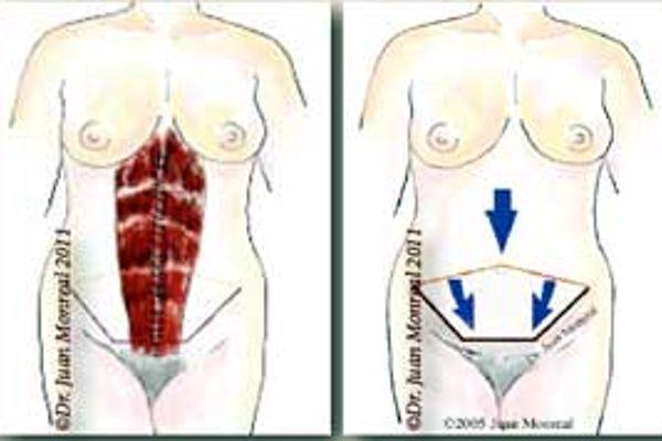 Tratamiento Abdominoplastia Dr. Juan Monreal