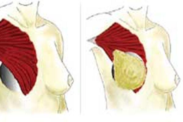 Tratamiento Aumento de pecho Dr. Juan Monreal