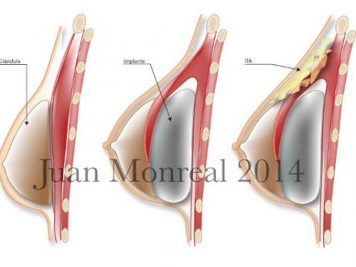 Tratamiento Aumento mamario compuesto Mastopexia Compuesta Dr. Juan Monreal