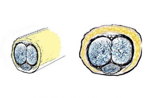 Tratamiento Cirugia Estetica Genital Masculina Dr. Juan Monreal