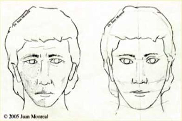 Tratamiento Contorno Facial Dr. Juan Monreal