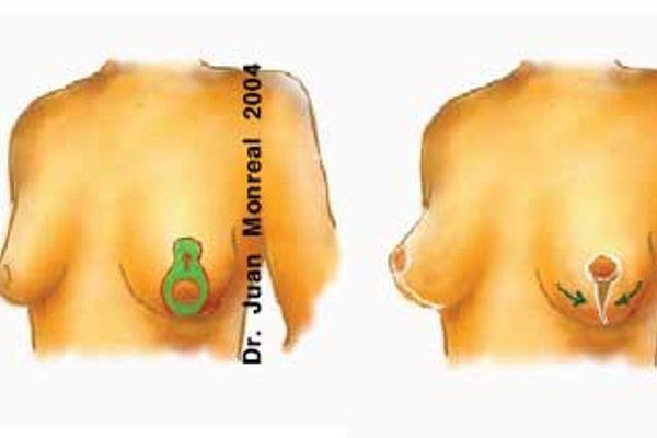Tratamiento Elevacion de pecho Maxtopextia Dr. Juan Monreal