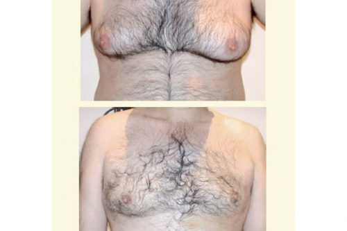 Tratamiento Ginecosmastia Dr. Juan Monreal