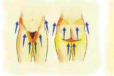 Tratamiento Lifting corporal Dr. Juan Monreal