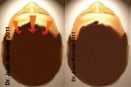 Tratamiento Lifting frontal Dr. Juan Monreal