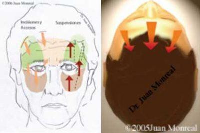 Tratamiento Lifting Vertical Dr. Juan Monreal