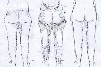 Tratamiento Liposuccion Dr. Juan Monreal