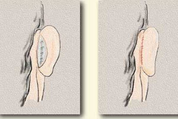 Tratamiento Otoplastia Dr. Juan Monreal