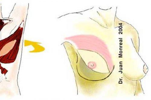 Tratamiento Reconstruccion Mama Dr. Juan Monreal