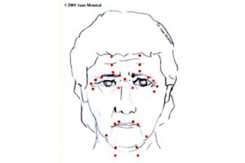 Tratamiento Rejuvenecimianto Facial No Quirurgico Dr. Juan Monreal