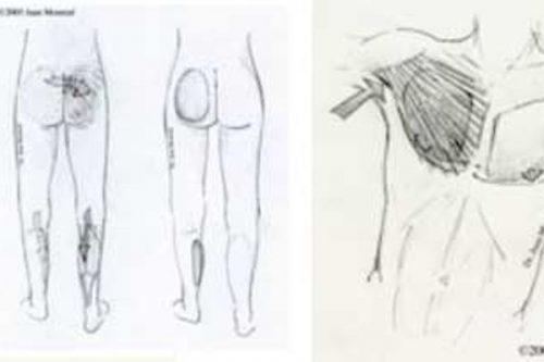 Tratamiento Remodelacion corporal Dr. Juan Monreal