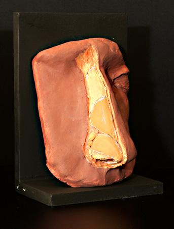 Fibrosis en rinoplastia