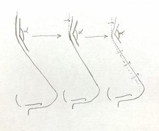 angulo-naso-frontal
