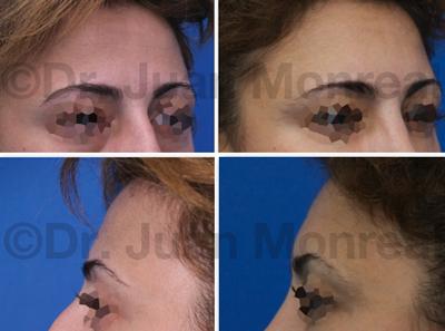 Lipoimplante en frente y sienes Dr. Juan Monreal