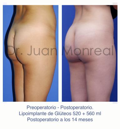 Preoperatorio y Postoperatorio de aumento de glúteos con injertos de grasa - Dr. Juan Monreal