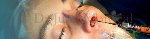 lipoimplante-nariz-dr-juan-monreal-wm