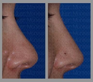 Antes y después - Preoperatorio - Postoperatorio de Rinomodelación - Dr. Juan Monreal