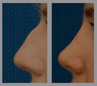 Antes y después - Preoperatorio - Postoperatorio de Rinoplastia - Dr. Juan Monreal