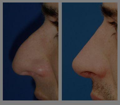 Antes y después - Preoperatorio - Postoperatorio de Rinoplastia. Dr. Juan Monreal