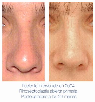 Antes y después - Preoperatorio - Postoperatorio de Rinoplastia - Rinoseptoplastia abierta primaria - Dr. Juan Monreal