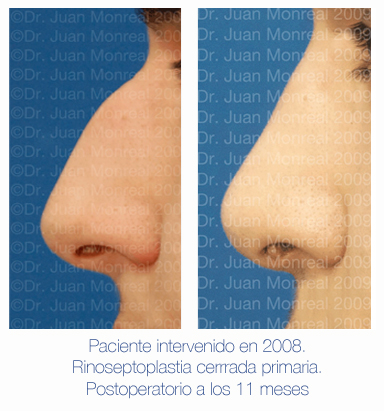 Antes y después - Preoperatorio - Postoperatorio de Rinoplastia - Rinoseptoplastia cerrada primaria - Dr. Juan Monreal