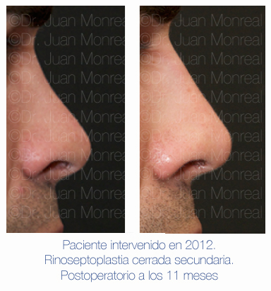 Antes y después - Preoperatorio - Postoperatorio de Rinoplastia - Rinoseptoplastia cerrada secundaria - Dr. Juan Monreal