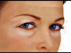 Esquema Blefaroplastia POST - Dr Juan Monreal