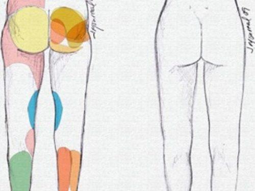 Tratamiento Aumento Pantorrillas Muslos Tobillos Dr. Juan Monreal