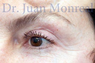 Tratamiento Cirugia Estética Contorno Ojos Dr. Juan Monreal