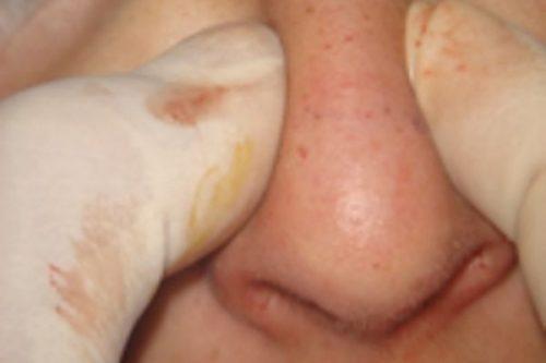 Tratamiento Rinoplastia Cerrada Dr. Juan Monreal
