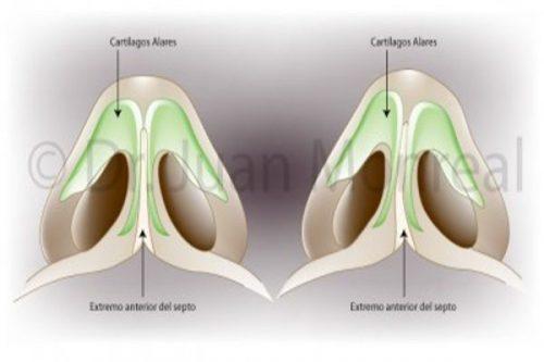 Tratamiento Rinoseptoplastia Dr. Juan Monreal