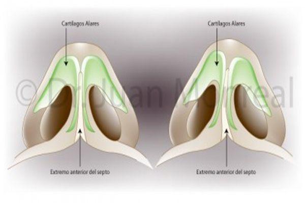 Proceso del cambio de nariz tras operación | Dr. Juan Monreal
