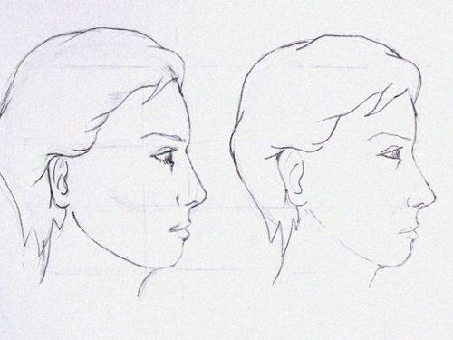 Tratamiento remodelacion facial Dr. Juan Monreal