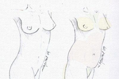 Tratamiento remodelacion mamaria lipoimplante Dr. Juan Monreal