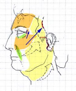 lifting-facial-dr-juan-monreal