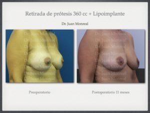 retirada-de-protesis-de-mama-dr-monreal.001