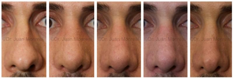Desinflamación progresiva de nariz un año dr juan monreal