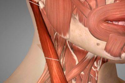 Cirugía regenerativa para el Tortícolis Muscular Congénito Dr. Juan Monreal