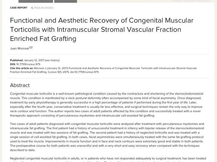 Tratamiento del Torticolis Muscular Congénito – Publicación del Dr. Monreal