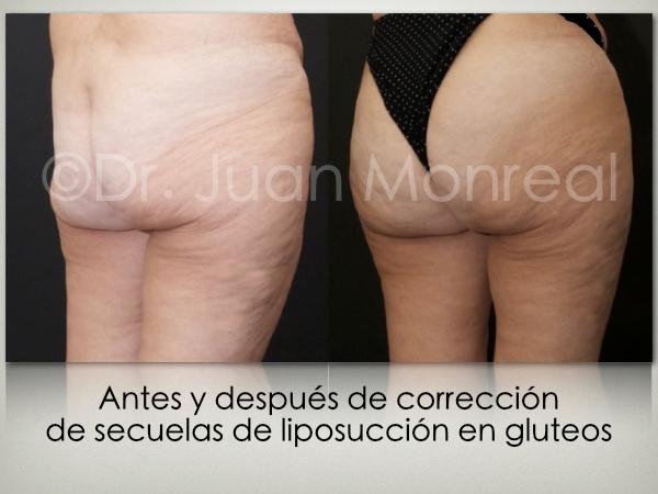 Lipoimplante-secuelas-lipo-02-dr-juan-monreal