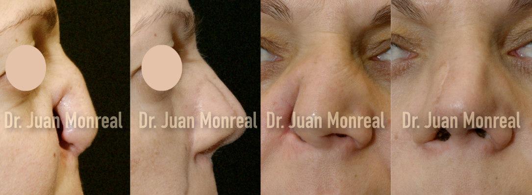reconstrucción nasal dr juan monreal