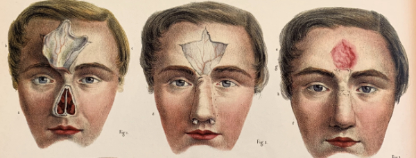 reconstrucción nasal atlas bourgery y jacob