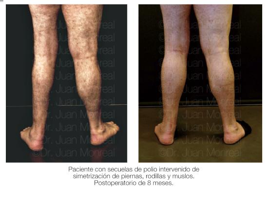 lipoimplante-piernas01-polio-dr-juan-monreal