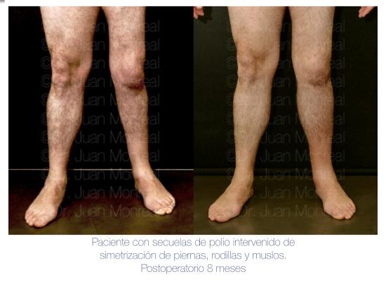lipoimplante-piernas02-dr-juan-monreal