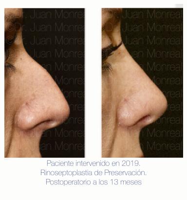 Preoperatorio - Postoperatorio de Rinoplastia de Preservación - Dr Monreal