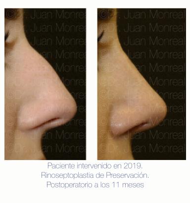 Antes Después de Rinoplastia de Preservación - Dr Monreal