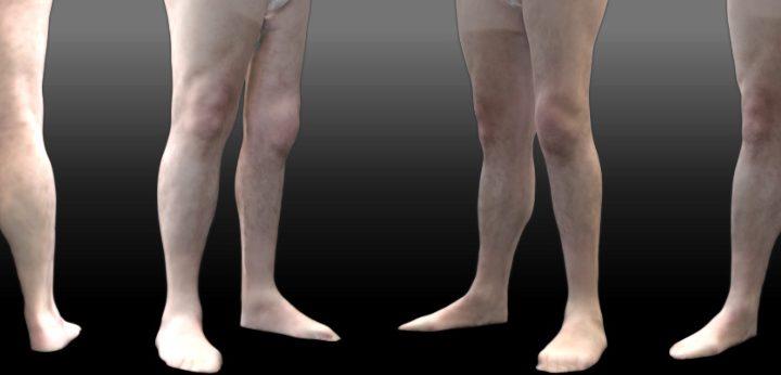 Tratamiento de las secuelas de poliomielitis y asimetrías graves en las piernas.