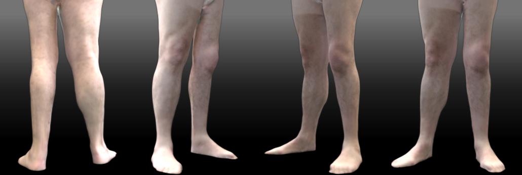 Asimetría de piernas