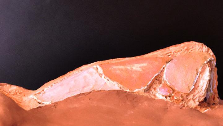 Fibrosis y otros problemas de cicatrización en Rinoplastia