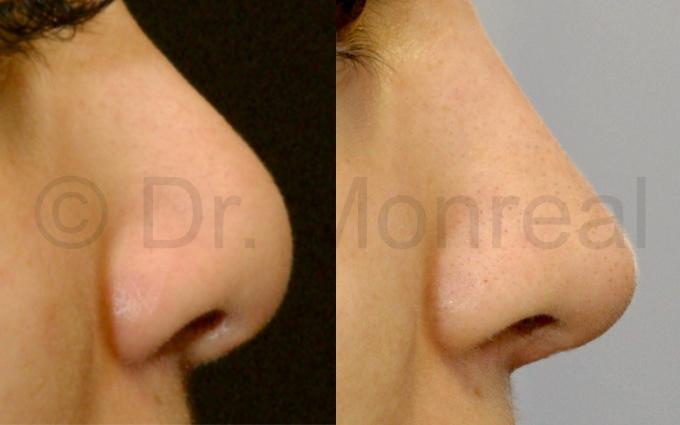 Antes después fibrosis de nariz. Dr. Juan Monreal